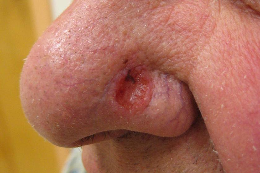 bőrrák az arcon tünetek