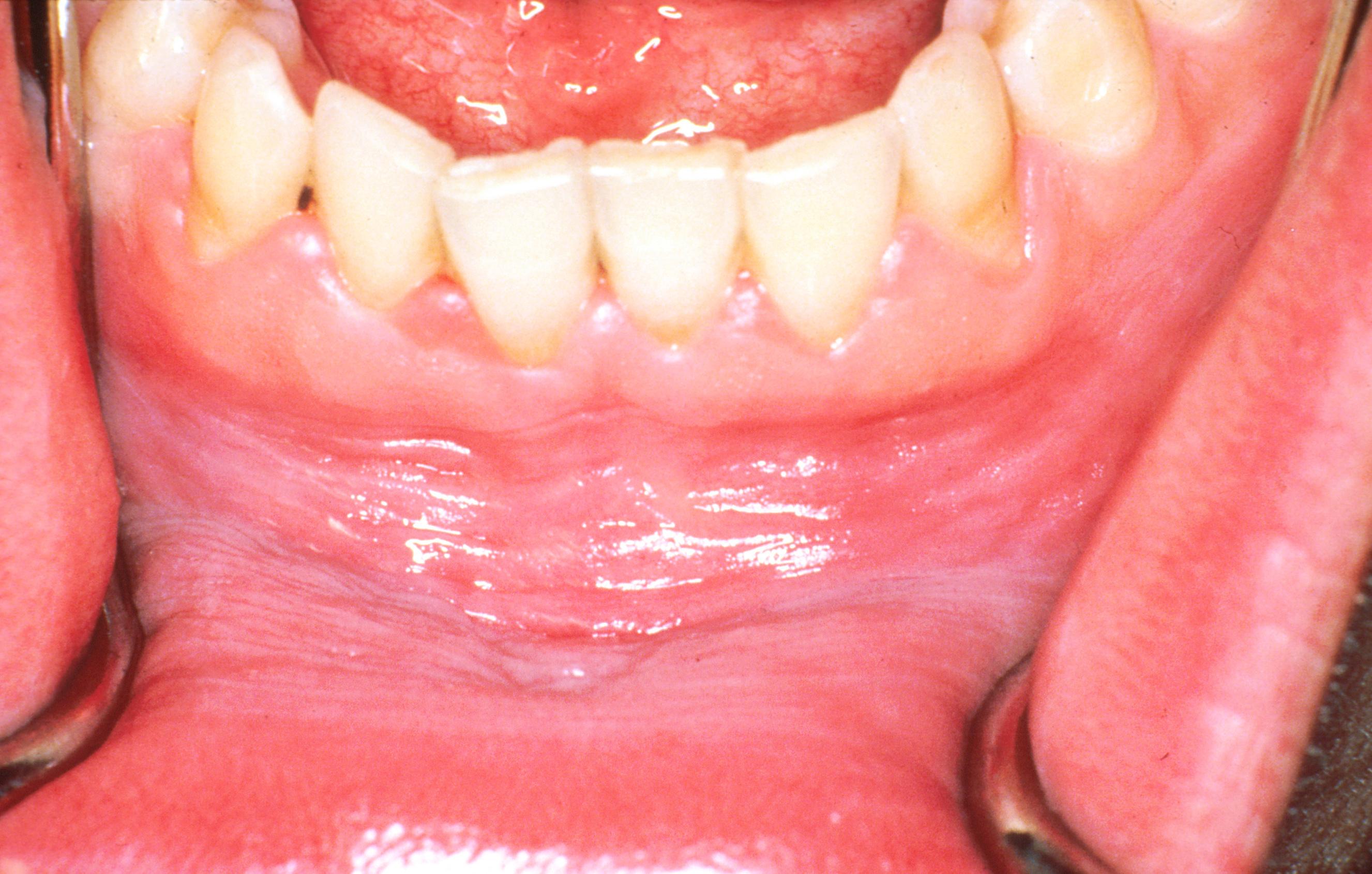 papillomavírus szerológia emberben hpv a bőr szemölcsén