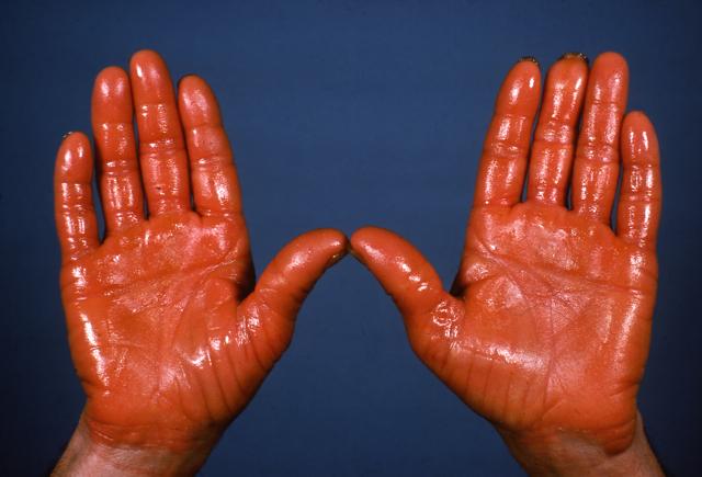 tipikus a giardiasis betegség a helmint tabletta neve