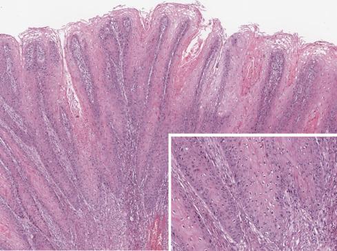 Carcinoma vaginae