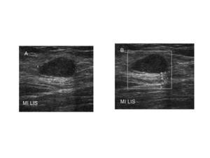 Az emlőmirigy intraduktális papilloma, típusai, diagnózisa és kezelése - Myoma