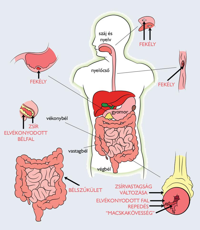 a gyomorrák túlélési aránya