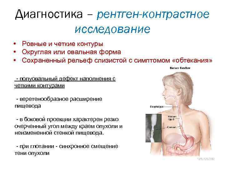 Laphámdaganat tünetei és kezelése