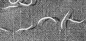 Hasi fájdalom pinworms, Enterobiasis (pinworms) gyermekeknél - Pinworm méh