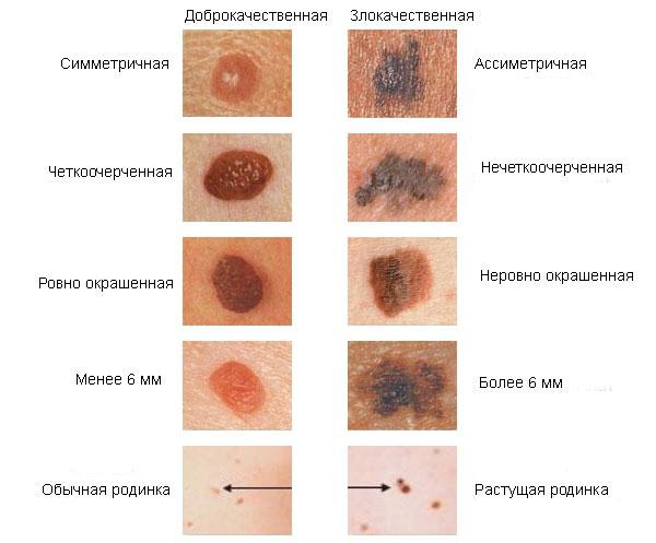 papillómák a méhben