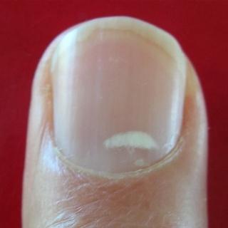 bőrrák a köröm alatt