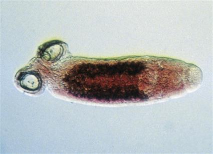 Parazita típusú coelenterates