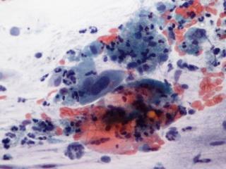 a papilloma vírus pozitív, mivel összehúzódik