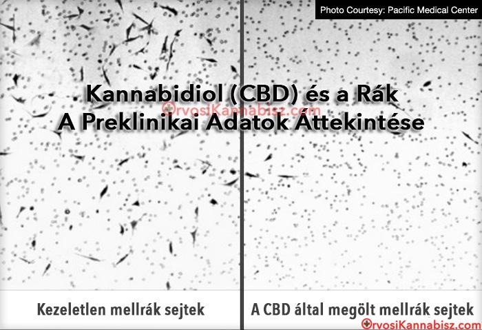 férgek giardia a felnőtt tünet nyelőcső pikkelyes papilloma patológia