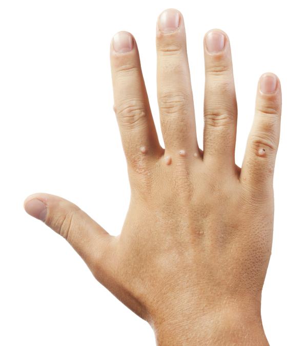 Törpe törpe tünetek és kezelés embereknél