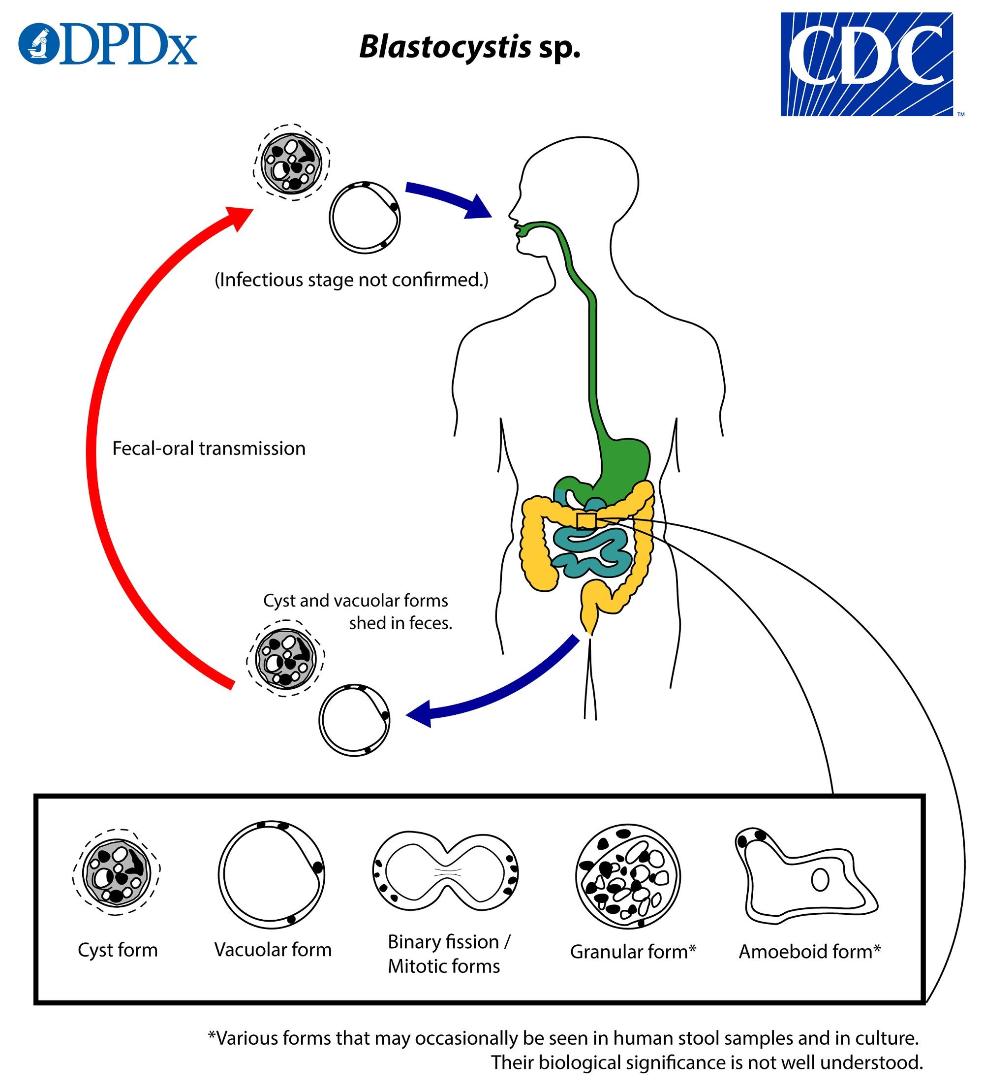 Paraziták a blastocystis hominis kezelés. Blastocystis hominis