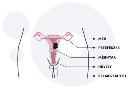 Méhnyakrák, péniszrák, garatrák a HPV vírus miatt | Rákgyógyítás