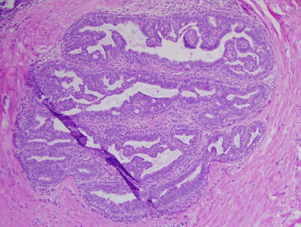 orális papilloma papilláris elváltozás b3