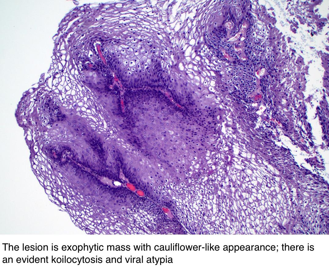 a hüvelyi nyálkahártya condyloma