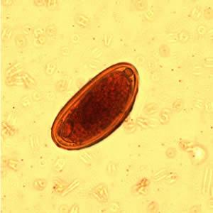 Tojások enterobiasis vermicularis