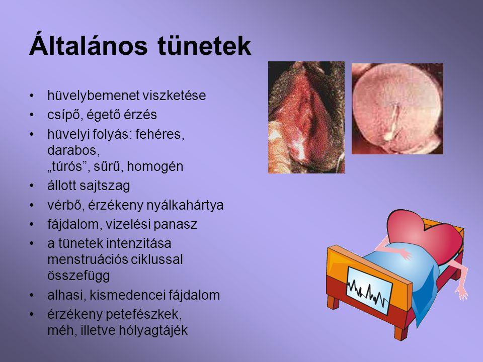 Nők réme: a hüvelyi fertőzés - Patika Magazin Online