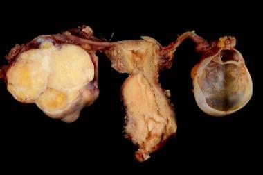endometrium rákos emedicin