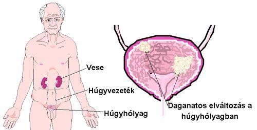 Húgyhólyagdaganat: ezek a kezelési lehetőségek - EgészségKalauz