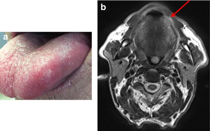 hpv tumor markerek