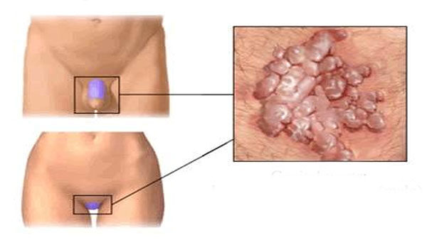 condyloma egy nőben okozza oxiori képek