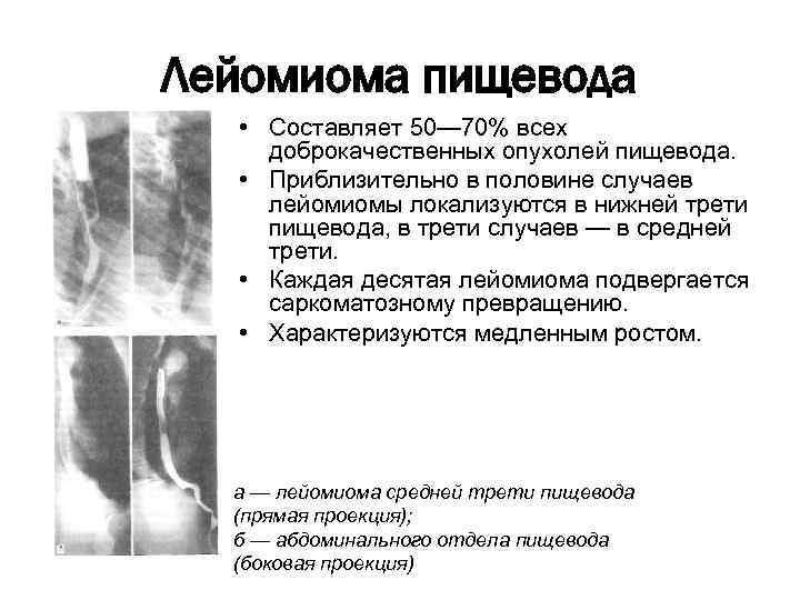 hogyan kezelik az enterobiasist gyermekeknél?