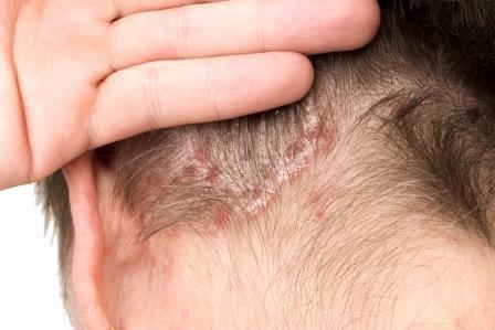 fejbőr bőrrák