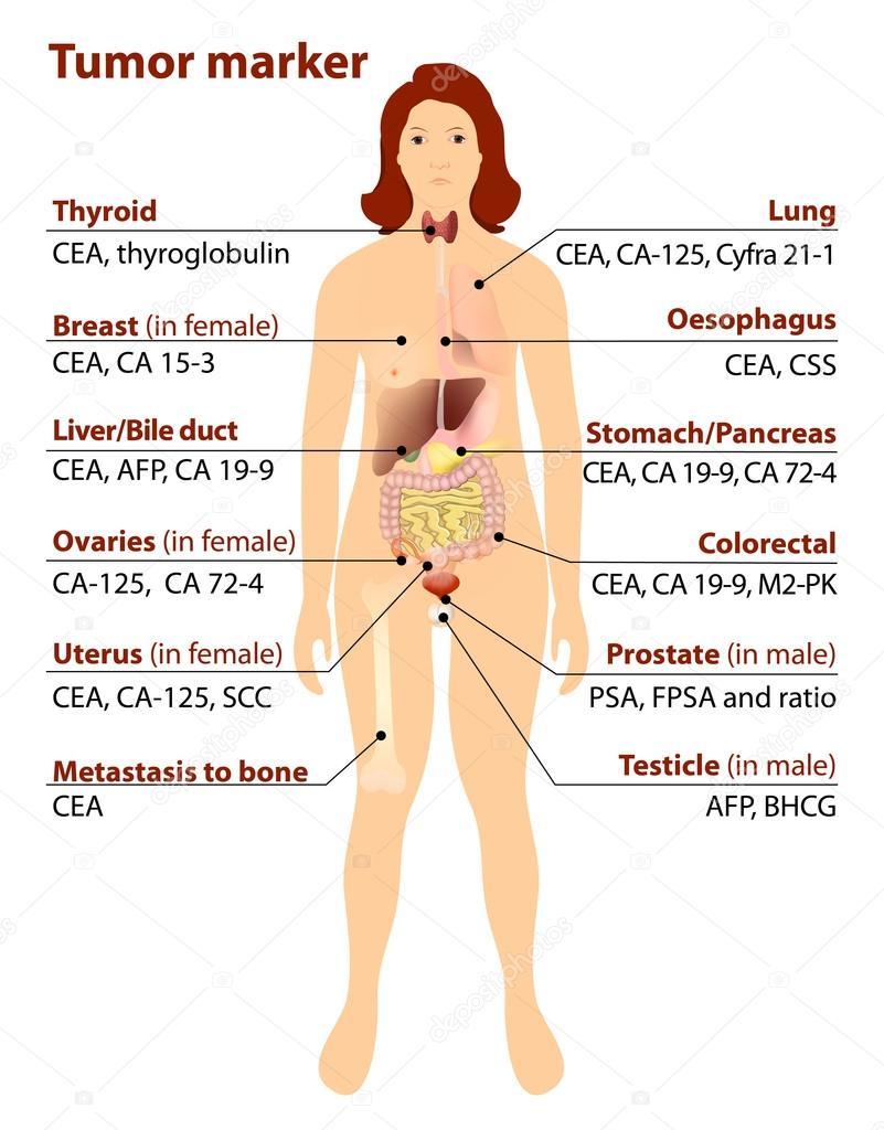 Hogyan jelzik a daganatos elváltozást a tumormarkerek?
