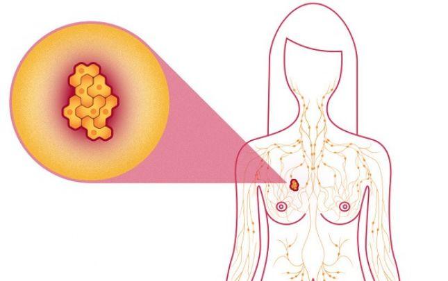 A daganatos megbetegedések lehetséges első jelei