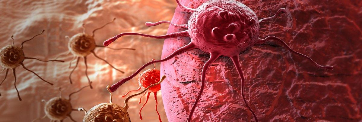 áttétes rák meghatározása gége papillomatosis orvosi meghatározása
