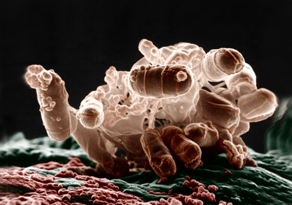 Mi a coli baktérium és mi az ellenszere?