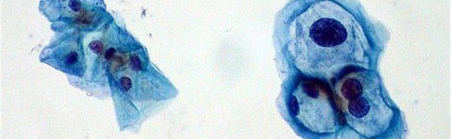 hónalj papilloma kezelése a helminthiasis megelőzésére szolgáló készítmények