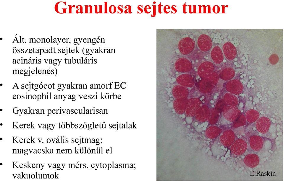 retikulált papillomatosis patológia