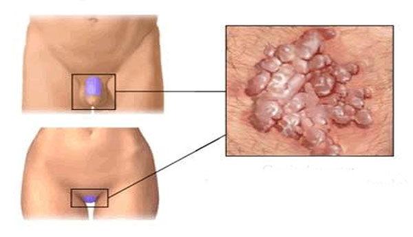 hüvelygyulladás vagy condyloma víruskód becsap