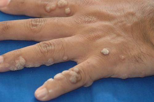 a hpv és a herpesz ugyanaz jön ki meddig tart a férgek kezelése