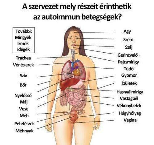 Ritka betegségek