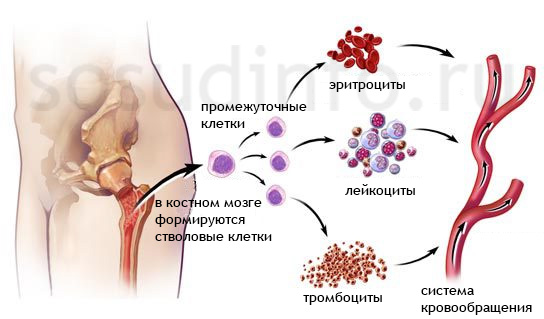 veleszületett dyserythropoietikus vérszegénység