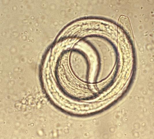 pinworm gyertyák gyerekeknek