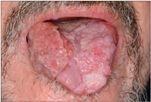 humán papillomavírus pozitív laphámrák minden parazita tisztítása