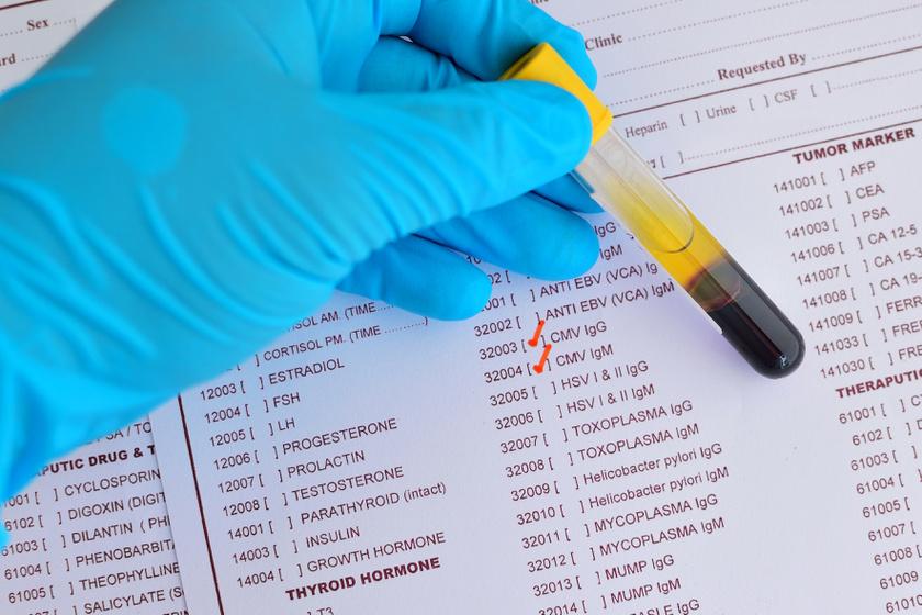 A leggyakoribb nőgyógyászati fertőzések