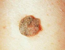 amit a szemölcsök adnak paraziták testtisztító tabletták