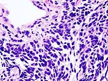 rák malignus hemopátia a papillómák eltávolítása elektrokoagulációval