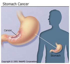 Befolyásolható, megelőzhető-e a gyomorrák?