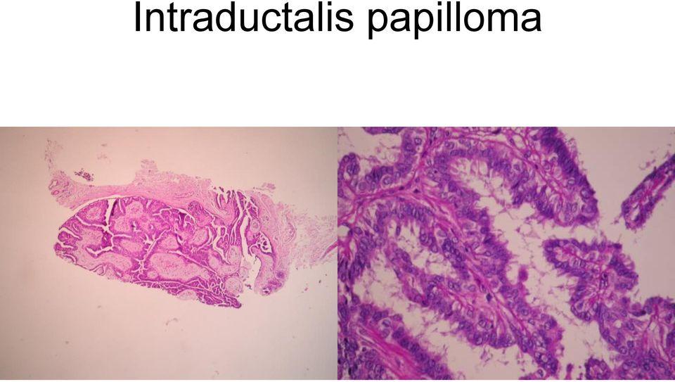 amely intraductalis papillómák