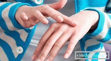 Helminták betegségei - Papilloma helminták