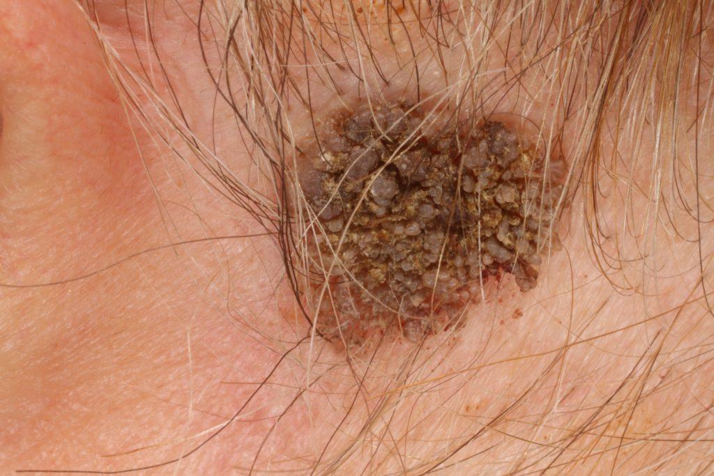 kerek csíra a bőrön hpv vírus mit kell tenni