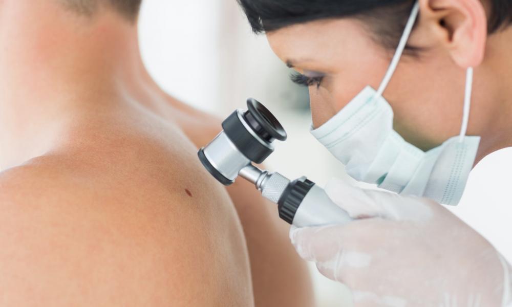 bőrrák genetikai hajlam az ember fonálféreg