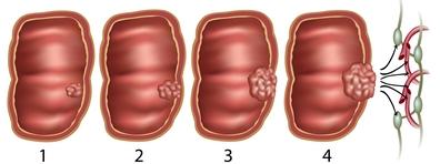 végbélrák t2 a chirurgitron condyloma gyógyulása