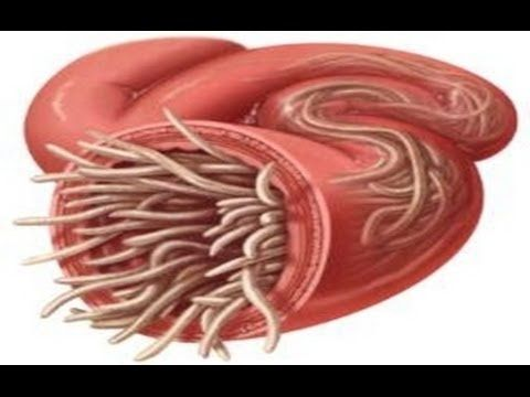Giardia y oxiuros, Enterobiasis fisiopatologia,