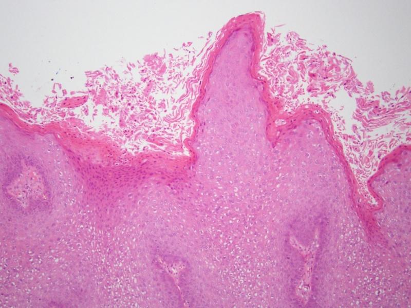 gardnerella és papillomavírus hpv gyanu ferfiaknal