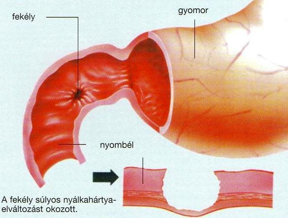 Gyomor és nyombélfekély: Milyen tünetekkel jelentkezhet?